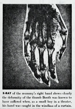 David E. George's Hand X-Ray