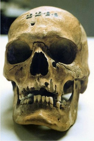 Lewis Powell's Skull Ownsbey